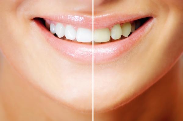 Services – Windwood Dental